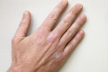 Allergie und Neurodermitis - Ursachen und Hilfe